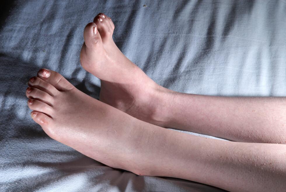 HOVNE BEIN: Ofte oppstår ødem eller vann i kroppen som hovne bein. Gjelder det bare et bein skyldes det som regel en tilstand i foten, mens hevelse i begge beina ofte betyr at det skyldes en tilstand ellers i kroppen.  Foto: CaptureIt / Alamy/All Over Press