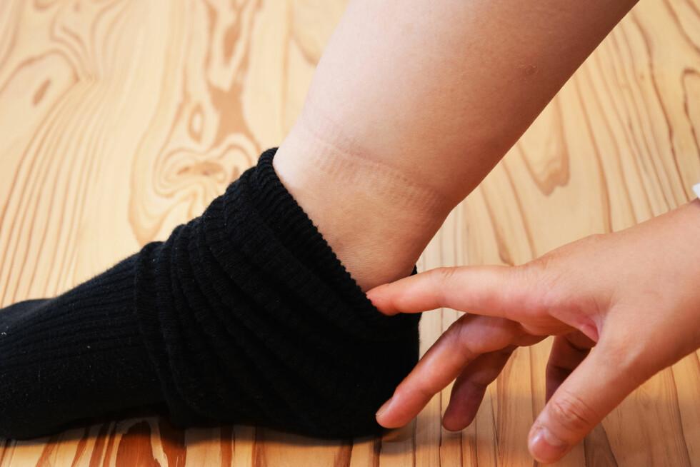 VANN I KROPPEN: De fleste merker det på beina, men det kan også oppstå andre steder på kroppen. Kvinner er spesielt utsatt ettersom østrogen kan bidra til å øke mengden vann opp mot eggløsning og under svangerskapet.  Foto: chuugo - Fotolia