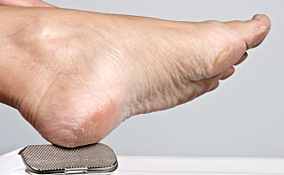 Slik blir du enkelt kvitt tørre føtter