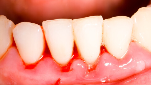 BLØR TANNKJØTTET? Det er ikke bare tennene dine du må passe på, men også tannkjøttet. Dersom du stadig opplever at det blør, kan det være et tegn på betennelse. Foto: Zsolt Bota Finna - Fotolia