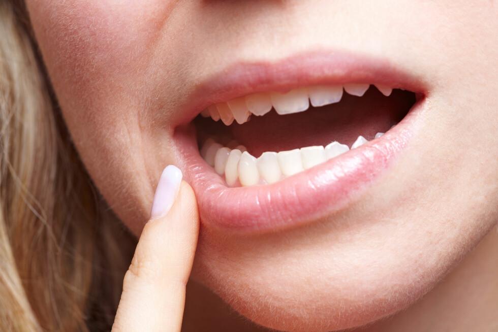 SMERTER I MUNNEN: Er du plaget med smerter, rødhet eller helvelser i munnen? Det kan blant annet skyldes rotspissinfeksjon - at roten av tannen er infisert. Foto: Robert Kneschke - Fotolia
