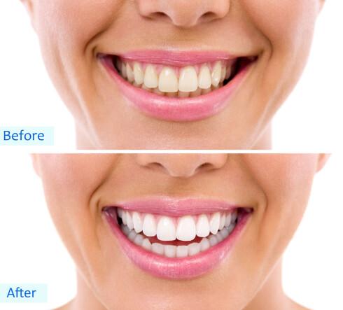 HELT VANLIG: Stadig flere bleker tennene. Tannlegene merker at flere spør om det. Foto: Fotolia