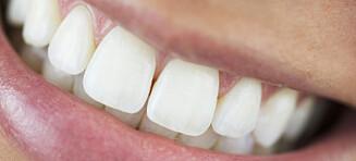 Du har ikke så gule tenner som du tror