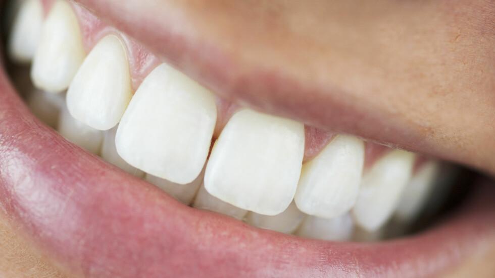 IKKE SÅ GULE: Svært ofte har pasientene hvitere tenner enn det de tror, forteller tannlegene KK.no har snakket med.  Foto: lindaparton - Fotolia