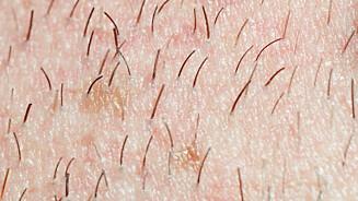 HÅR: Det er ikke uvanlig å få hår på rare steder på kroppen... Foto: (c) Jens Nieth/Corbis/All Over Press