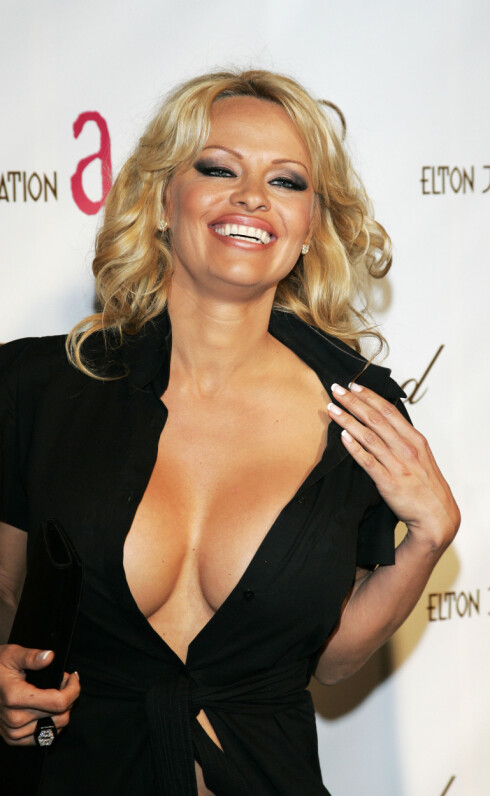 SILIKON: Pamela Andersons tydelig opererte pupper er ikke det de fleste foretrekker. Foto: All Over Press
