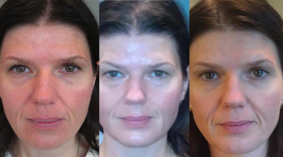 ANSIKTSMASSASJE: Før behandling, rett etter seks behandlinger og en uke etter siste behandling.