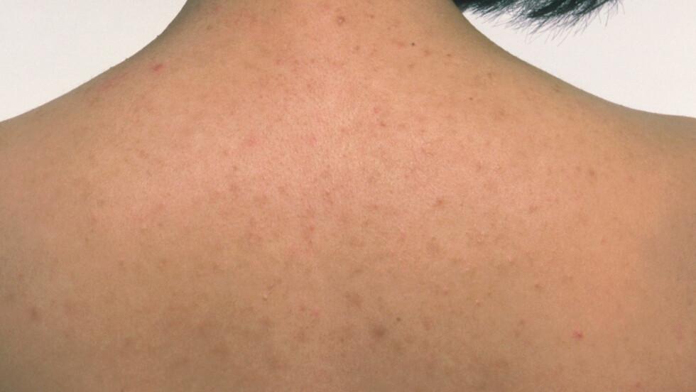 <strong>UREN HUD:</strong> Det er ikke bare i ansiktet hudormer og akne dukker opp, også på kroppen, og ofte på ryggen. Foto: All Over Press