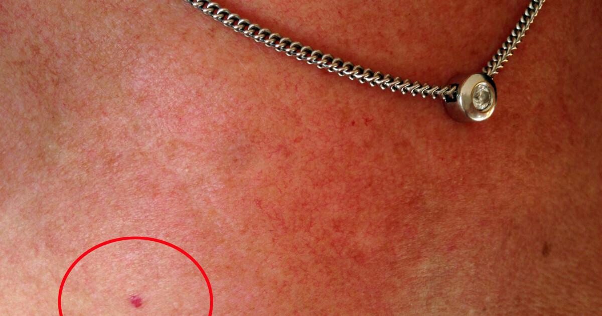 Huden under prikker små bitte røde små prikker