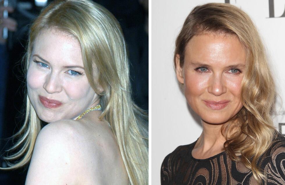 HAR HUN GJORT NOE?: Renee avbildet i 2004 (til venstre) og under ELLE Women in Hollywood Awards mandag kveld.  Foto: All Over Press
