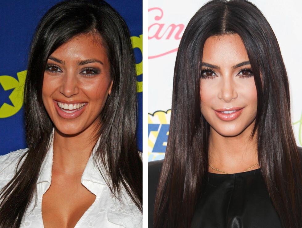 BITTESMÅ ENDRINGER: Kim Kardashian har aldri innrømmet det, men det er tydelig at hun har gjort ørsmå endringer på utseendet sitt (blant annet tennene)  - her ser du et bilde fra 2006 (til venstre) og et bilde fra tidligere denne måneden.  Foto: All Over Press