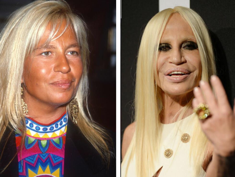 DRASTISK TIL VERKS: Motelegende Donatella Versace har gjort MYE med ansiktet sitt de siste årene. Ifølge Daily Mail hevder motedronningen selv at hun kun har brukt botox og at hun har fantastiske hudpleieprodukter... Foto: All Over Press