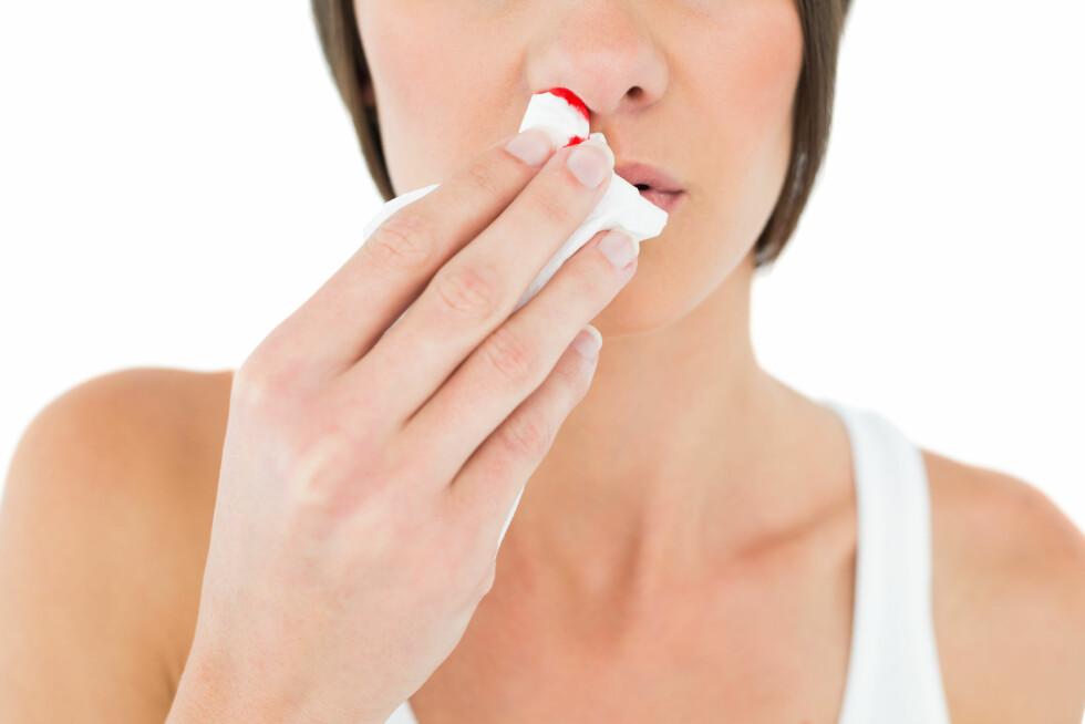 STOPPE BLØDNINGEN: Når du blør neseblod er det viktig at du lener deg fremover og ikke bakover. Lener du deg bakover vil blodet renne ned i magen din og du vil bli kvalm og kaste opp.  Foto: lightwavemedia - Fotolia
