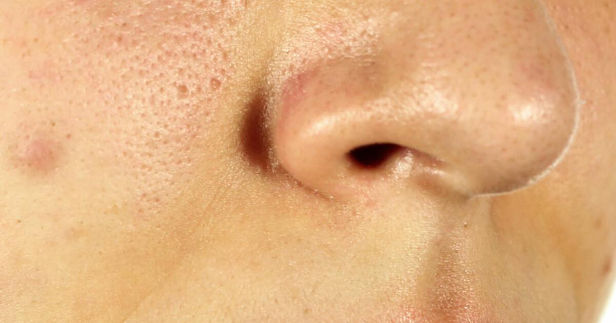 bli av med porer i ansiktet