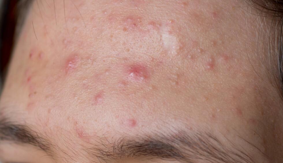 KVISER: Er som regel opphopning av talg, bakterier og urenheter i porene. Bakterier fra hendene dine kan føre til tette porer og urenheter.