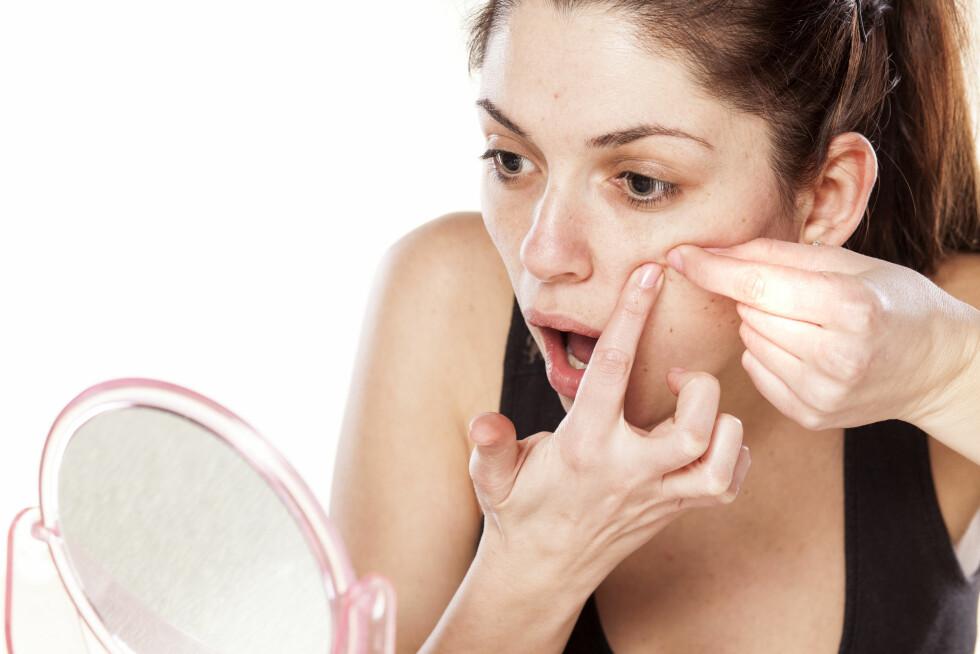 STOPP! Å klemme på kviser kan gi deg arr og pigmentforandringer. Piller du på huden med skitne hender, kan du dessuten framprovosere nye kviseutbrudd. Foto: vladimirfloyd - Fotolia