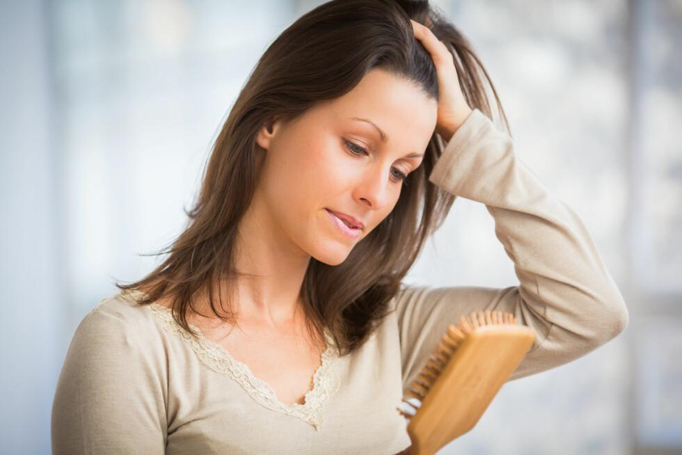 <strong>HÅRTAP:</strong> At man mister litt hår hver dag er helt normalt, men man kan også ha perioder i løpet av livet der en kan miste mye hår. Foto: REX/Garo/Phanie/All Over Press