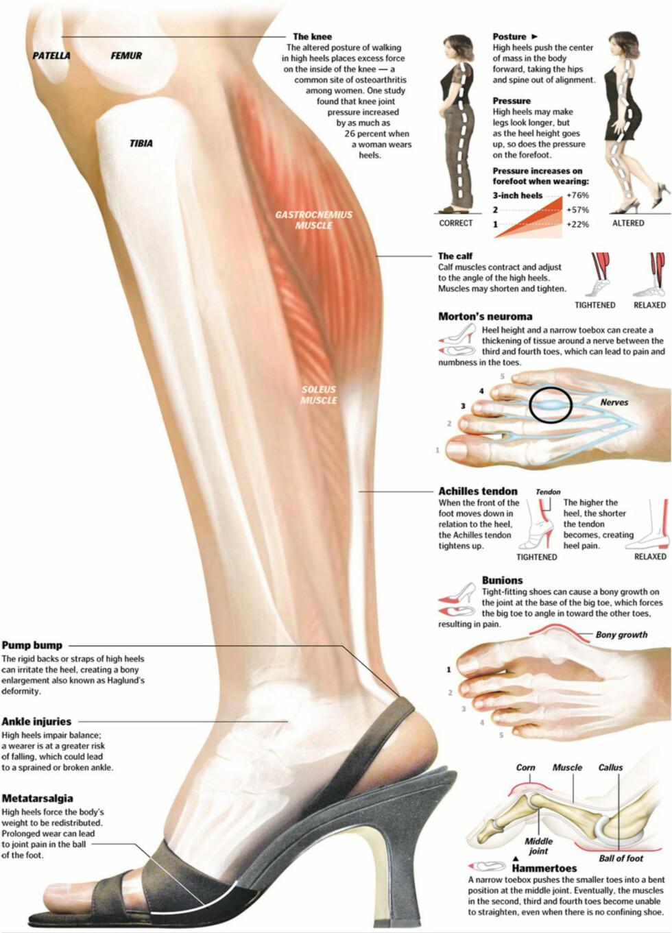 STOR EFFEKT: Høye hæler gir deg ikke bare gnagsår på lilletåa, men kan ha en negativ effekt på tærne, anklene og leggene - for å nevne noe. Foto: Naprapatsenteret