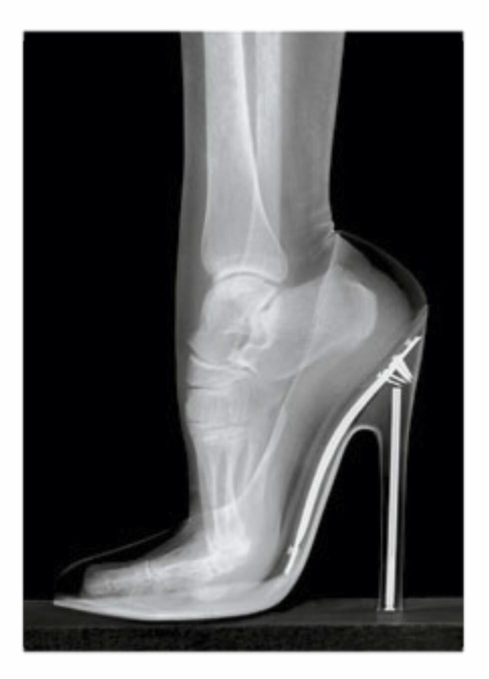 RØNTGEN: Ved hjelp av røntgen, kan man raskt se hvor unaturlig denne posisjonen egentlig er for foten.  Foto: Naprapatsenteret