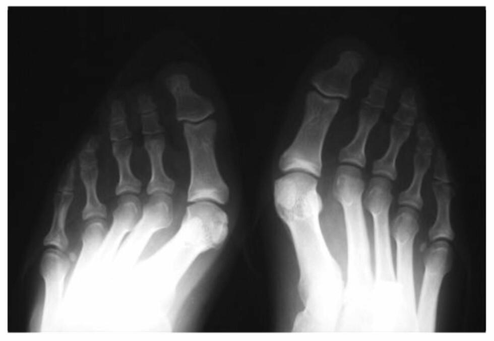 FOTSKADER: Et vanlig problem som følge av mye høye hæler og trange sko er hallux valgus, som vil de at stortåen er blitt skjev og beveger seg i retning av lilletåen. Foto: Naprapatsenteret