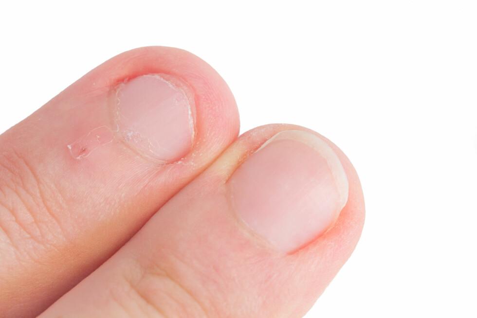 BITER NEGLER?: Biter du negler er det ekstra fort gjort å få neglerotbetennelse.  Foto: eyetronic - Fotolia