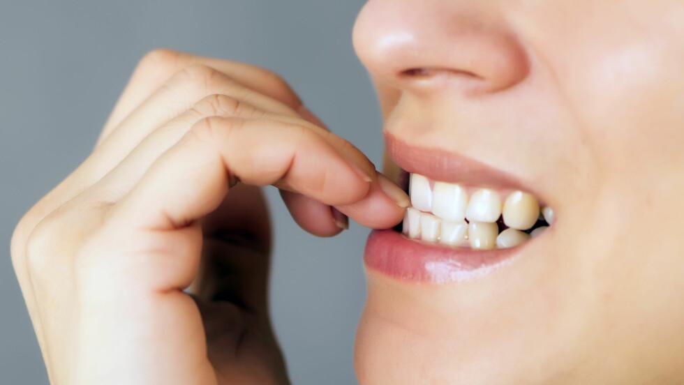NEGLEROTBETENNELSE: Plages du ofte med at området rundt neglen din blir vondt og hovent. Da kan det være du har fått neglerotbetennelse.  Foto: fotyma - Fotolia