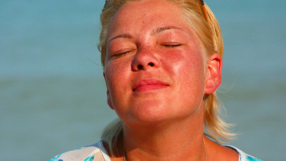 AU DA! Ble det litt i overkant mye sol? Det aller viktigste er å gi huden mest mulig fuktighet og ellers la den være i fred de neste dagene. Om du virkelig ønsker å sminke bort noe av rødheten, finnes det imidlertid produkter og triks som kan hjelpe deg med det.  Foto: Fotolia