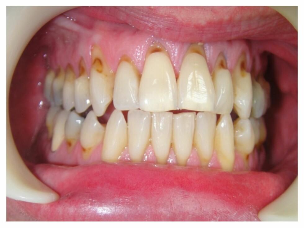 PUSSESKADE: Hard pussing vil ikke nødvendigvis ødelegge tennene dine, men det kan medføre skade, som vist på bildet. Foto: Tannlege Inger Lise Mathiesen