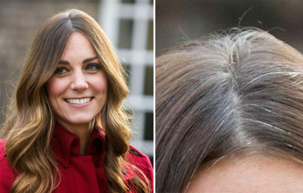 GRÅ RØTTER: Også hertuginner får grå hår, og Kate ser slettes ikke ut til at den grå etterveksten plager henne. Det bør det da heller ikke gjøre.  Foto: All Over Press