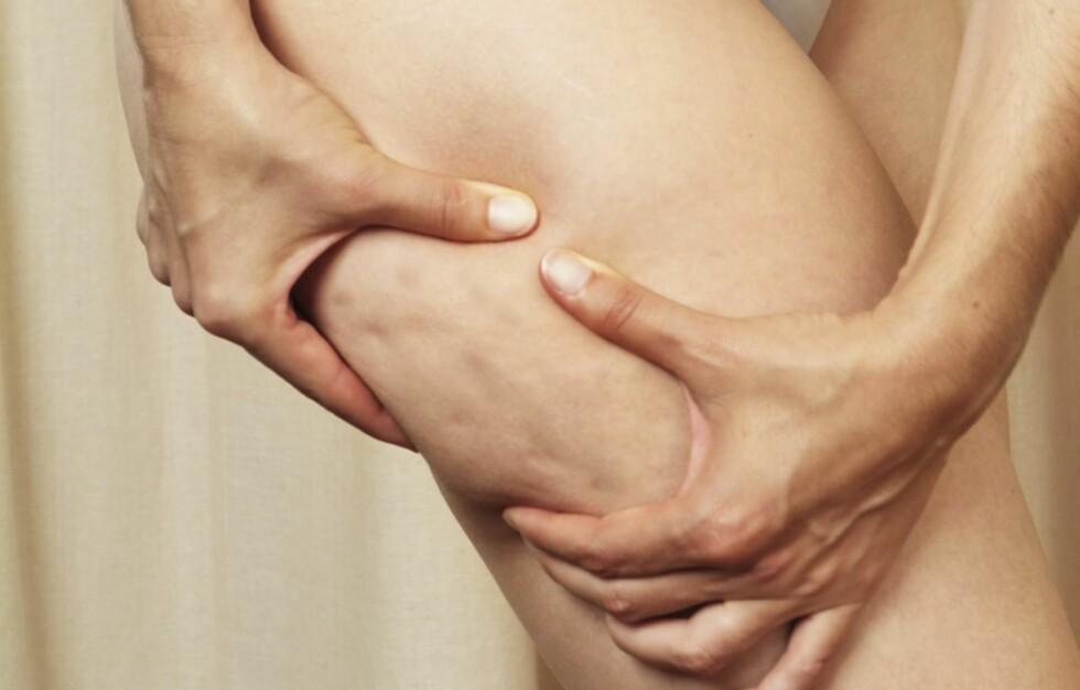 HUDPROBLEM: Cellulitter handler først og fremst om huden din, ikke vekta, mener en kjent, amerikansk hudlege.  Foto: Thinkstock