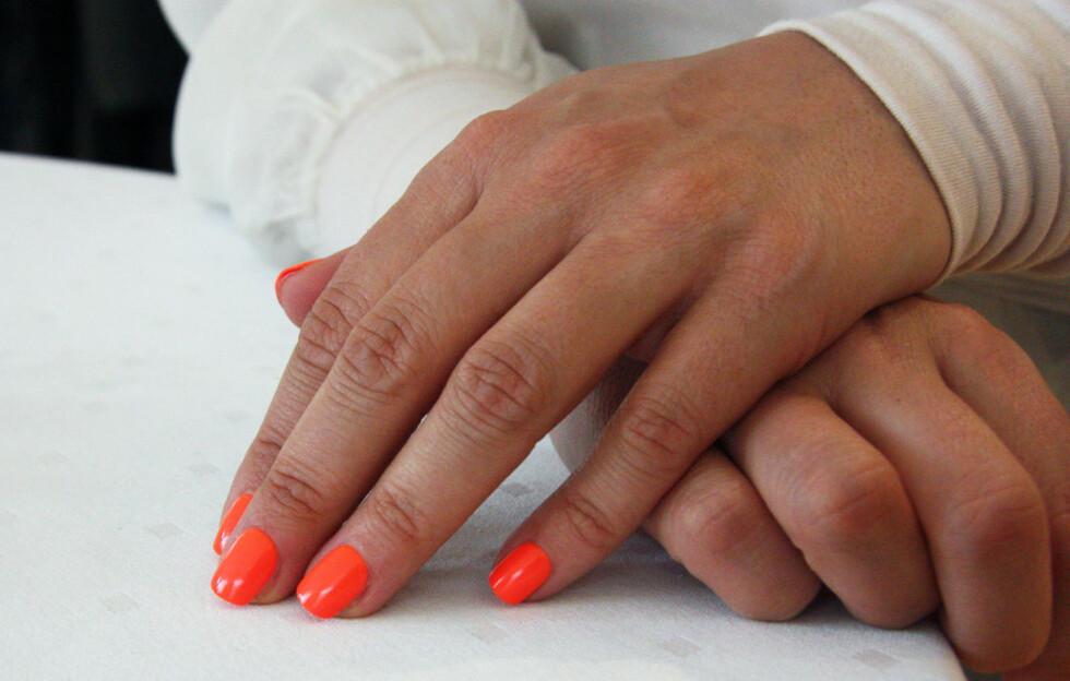 <strong>SUPER BONUS:</strong> Neonfarger på neglene gjør at du ser brunere ut – et supert triks nå som vi viser fram mer hud og kanskje gjerne vil se litt sommerbrune ut.  Foto: Adele Cappelen Blystad