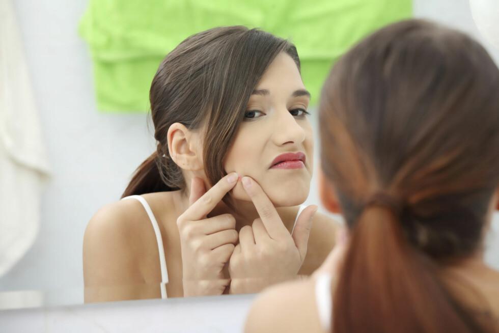 KAN HJELPE: Uren hud vil som regel kunne bli bedre av p-piller. Foto: Getty Images/iStockphoto