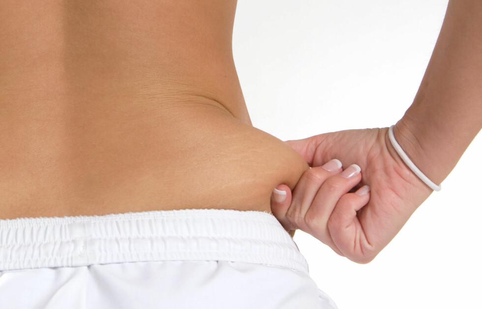 FETTET SOM SVIR KALORIER: Forskere har funnet ut at brunt fett - en type fett vi er født med, og som bidrar til at vi holder varmen - kan øke forbrenningen og være en nøkkel i kampen mot overvekt. Foto: Fotolia