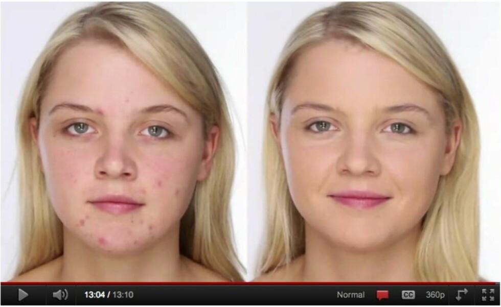 FØR OG ETTER: Den anerkjente makeupartisten Lisa Eldridge viser deg hvordan du sminker vekk kvisene så du får en perfekt base til sesongens festsminke – eller til hverdags.  Foto: YouTube-kanalen lisaeldridgedotcom