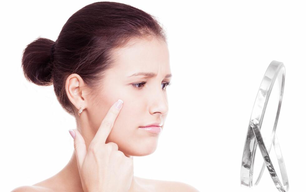 KVISEKRISE: Enten du sliter med akne eller bare opplever å få en kvise i ny og ne kan makeupartistens tips være nyttige å lære seg.  Foto: LanaK - Fotolia