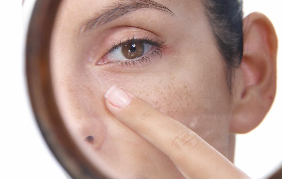 IKKE KLEM PÅ PRIKKENE: Du bør unngå å klemme ut hudormene. Daglig rensing og eksfoliering et par ganger i uka er den beste forebyggeren, men om du ikke klarer å la være, bør du sørge for å varme opp huden med vanndamp før du begynner. Og klem aldri med neglene, sier ekspertene.  Foto: nyul - Fotolia