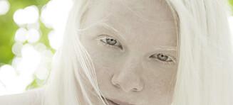 Andrea Pharo Ronde (20) har albinisme
