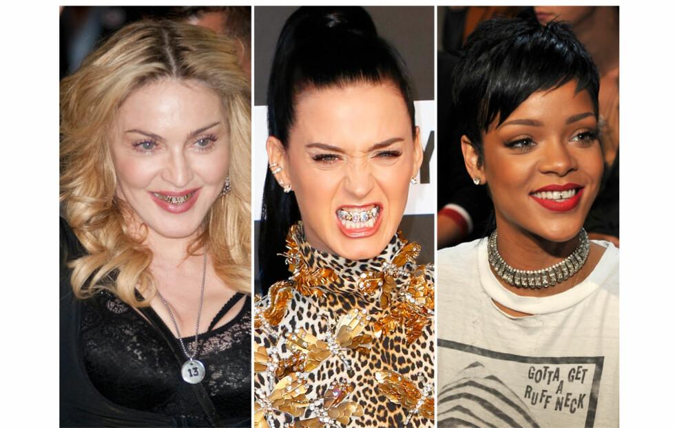 """SE OPP FOR GRRRGRILLZ: - Jeg synes ikke dette er spesielt kult i det hele tatt. Takke meg til hvite bling bling tenner, sier KKs moteekspert og stylist Nadine Monroe. Både Madonna, Katy Perry og Rihanna har slengt seg på trenden om å pynte opp tennene med """"grills"""".  Foto: All Over Press"""