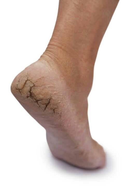 MEST UTSATT: Ifølge forskerne er hælen det stedet der det ofte befinner seg flest ulike soppslag. Denne personen har fått en soppinfeksjon i hælene...au.. Foto: Thinkstock