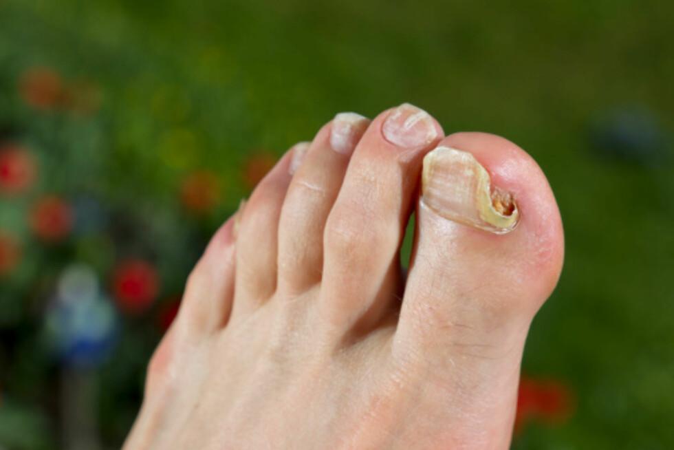 UNDER NEGLENE: Det er også veldig vanlig å få fotsopp under neglene. Det kan være lurt å være litt ekstra obs på dette, da det kan danne seg infeksjoner etter hvert...  Foto: Getty Images/iStockphoto