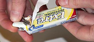 Sukkerfri tyggegummi kan skade tennene dine