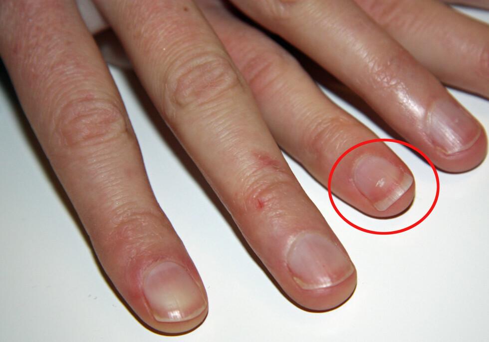 EN AV MANGE MYTER: At de hvite flekkene på neglene skyldes kalsium-mangel stemmer ikke.  Foto: Adéle Blystad