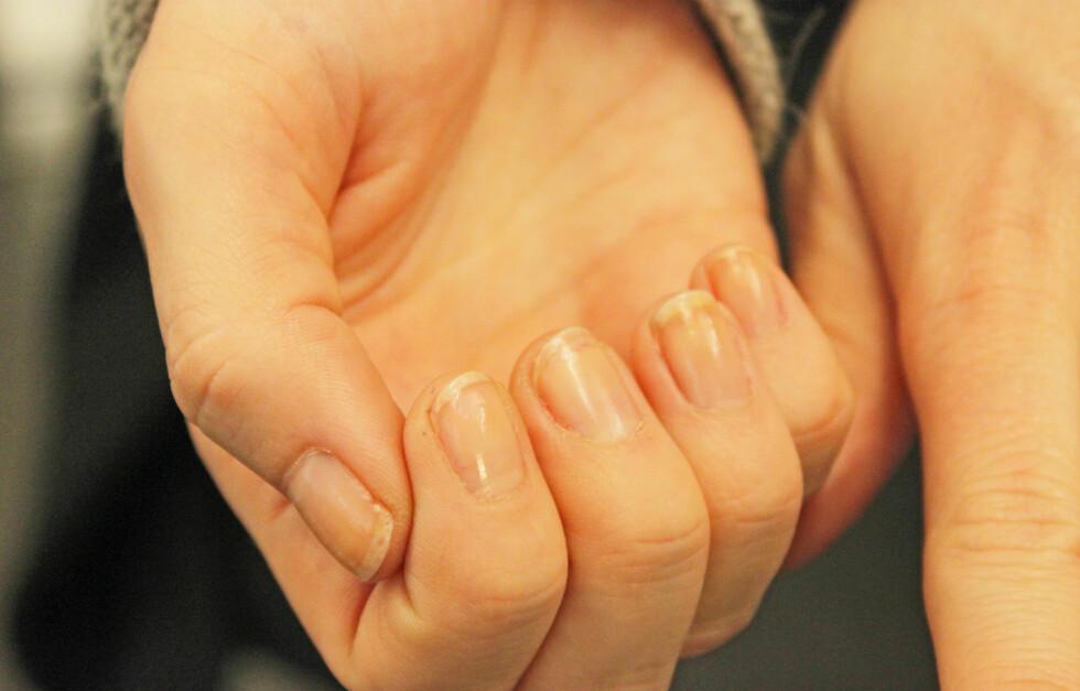 SJEKK NEGLENE: Det kan være lurt å ta en liten ekstra-titt på neglene dine. De kan nemlig si ganske mye om helsetilstanden din.  Foto: A C. Blystad/ T. R. Engen