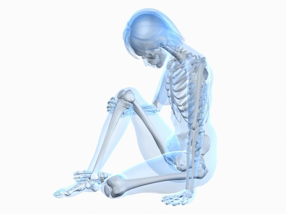 FRA 19-24 ÅR: Studien fra Sverige viste at de som trente mye fra de var 19 til 24 år hadde større beintetthet i hoftene, nedre del av ryggraden, armer og bein, sammenlignet med de som minsket nivået av fysisk aktivitet i denne perioden.  Foto: Getty Images/iStockphoto
