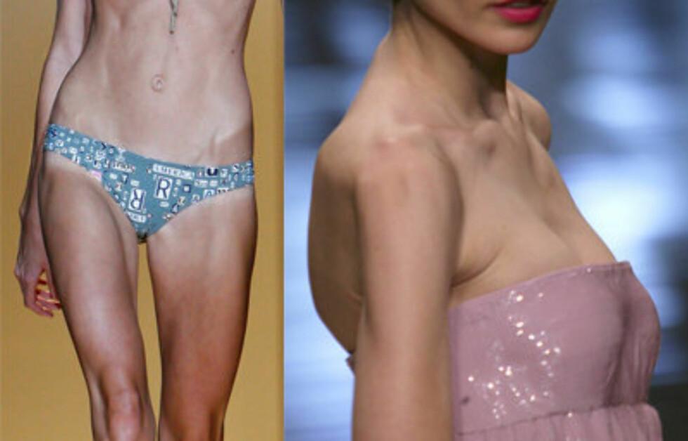 <strong>NEI TAKK:</strong> Åpenbart utmagrede og usunne modeller er ikke lenger noe du skal se på catwalken under New York Fashion Week.
