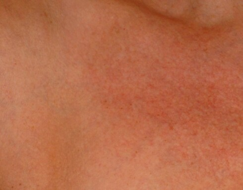 Hudområdet i halsutringingen er tydelig mer solskadet enn huden lenger ute på siden. Foto: Hudklinikken/Jon Langeland