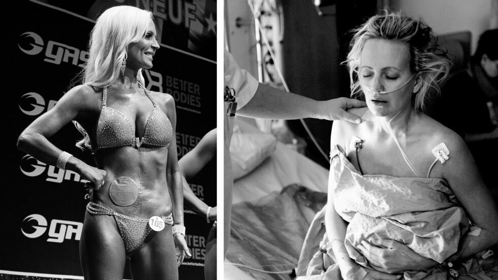UTLAGT TARM: Et av målene til kronisk syke Ingrid Hoff Melkersen var å gjennomføre NM i bikinifitness. Dette målet klarte hun å nå to måneder før den kompliserte operasjonen. Foto:  Foto: Robert Rønning og An-Margitt Lerfald // TV 2