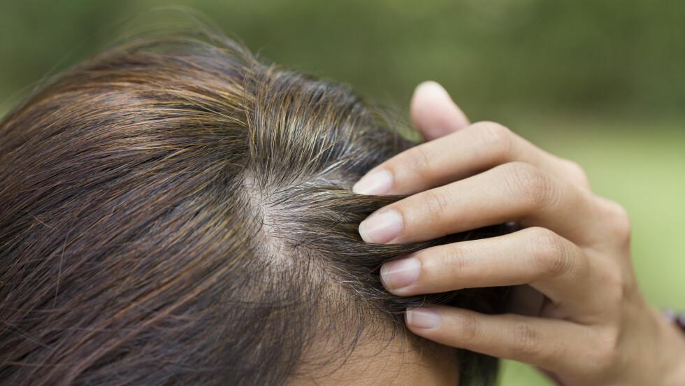 <strong>GRÅTT HÅR:</strong> De fleste av oss blir grå i håret i tredveårene, men det er ikke uvanlig at det skjer tidligere.  Foto: Scanpix