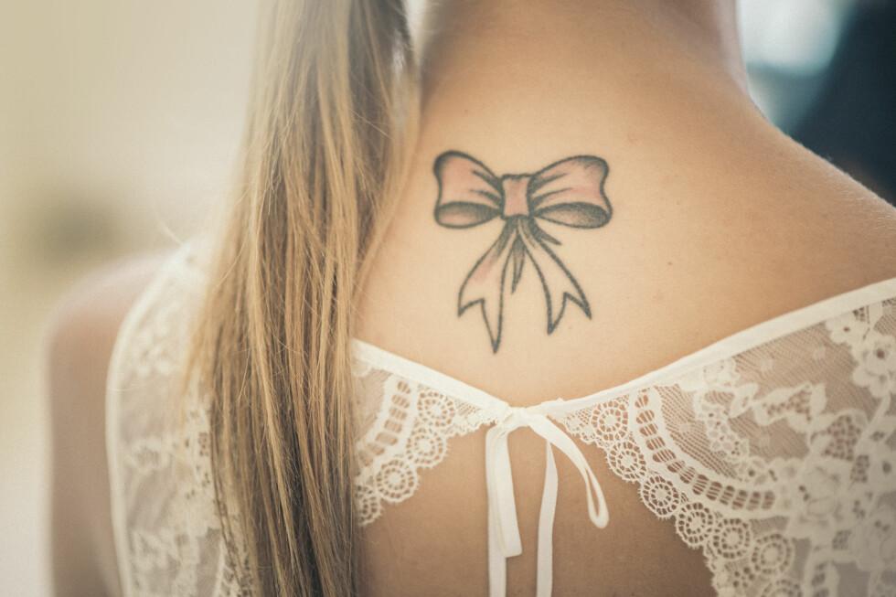 FJERNE TATOVERING: Det kan være lurt å tenke seg om en gang eller to før du tar en tatovering - det er nemlig smertefullt å få den fjernet! Foto: NTB Scanpix
