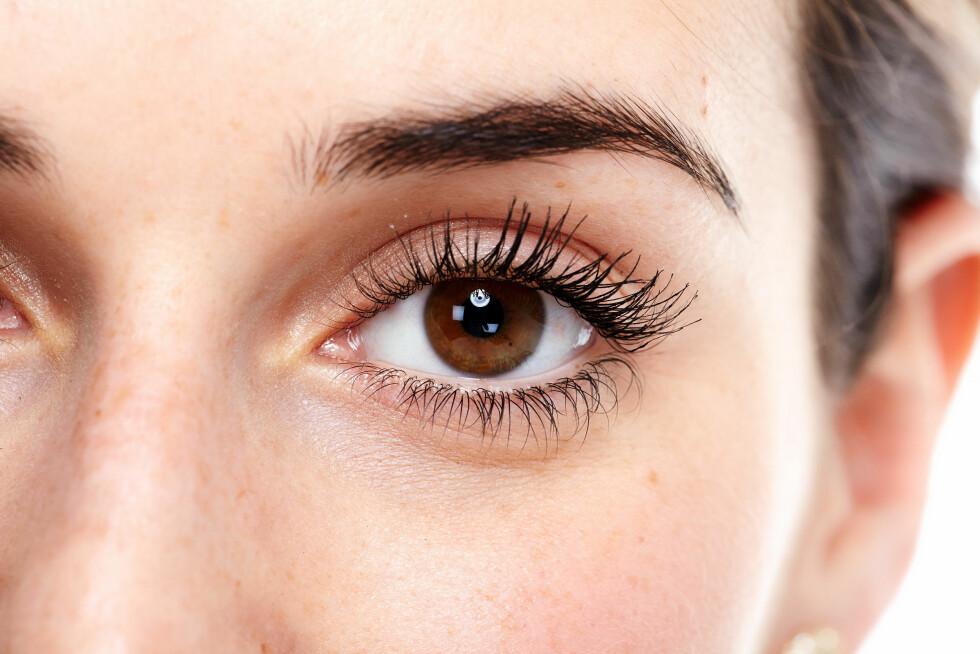 LEAMUS: Er du plaget med leamus i øyet? Da kan det være du må spise mer mat som inneholder magnesium.  Foto: Shutterstock / kurhan